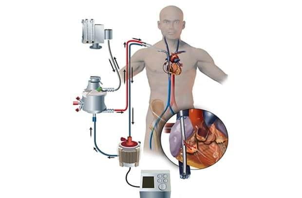 ECMO medicina come funziona - morte in standby