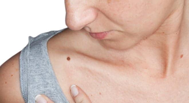 DIRC3, fermare il melanoma