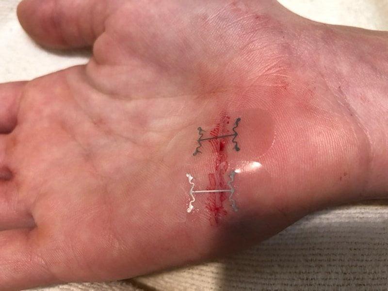 MicroMend, sutura fai da te senza chirurgia