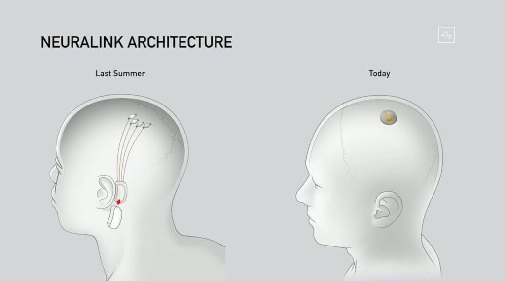Demo Neuralink, il design dell'impianto Link