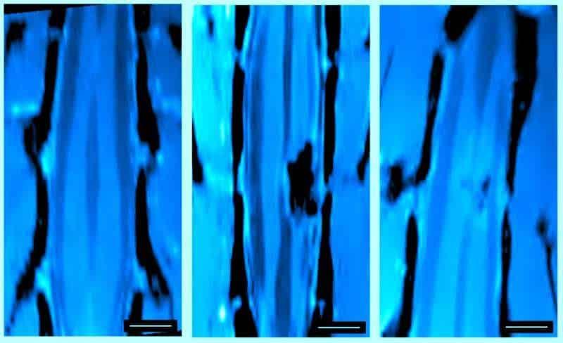 Riparare lesioni del midollo spinale con i nanomateriali