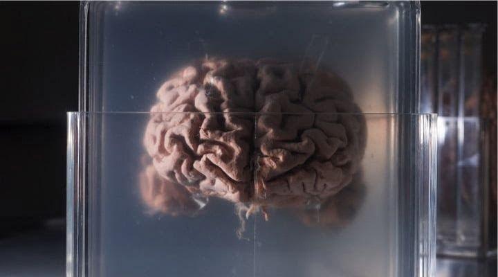 Conservare e digitalizzare il cervello nectome