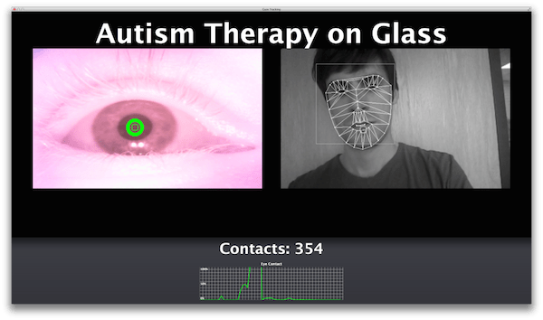 therapy-glass